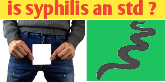 Is syphilis an STD ? Cause, transmission symptoms and treatment