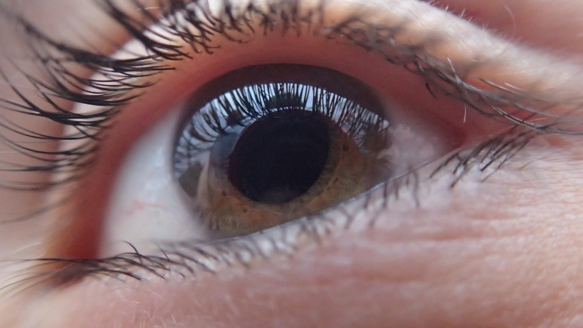 Deficiency of Vitamin A disease cataract