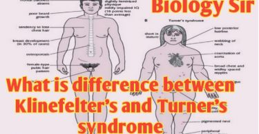 Differences between Klinefelter's and Turner syndrome